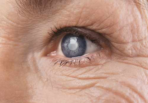 15 Minute Laser Treatment Best For Glaucoma Onmedica